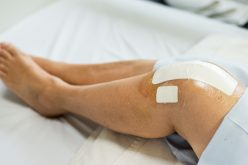 Partial knee replacements are better for many patients and cheaper for the NHS