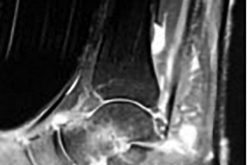 Posterior tibial tendon dysfunction and treatment of stage II disease