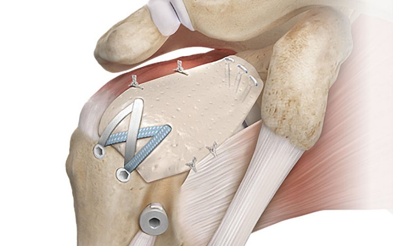 Product features by Arthrex - Orthopaedic Product News