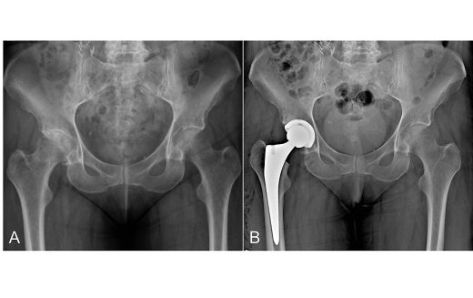Patient-specific instrumentation for total hip and knee arthroplasty: Is it the new surgeons' guide to improve implant positioning?