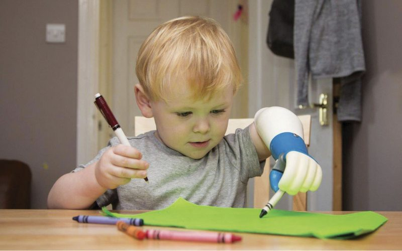 Ambionics launches trial as children's prosthetics breakthrough gets closer