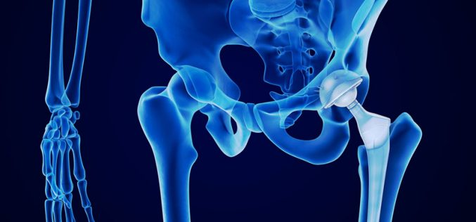 Tiny antibiotic beads fight infections after joint replacement
