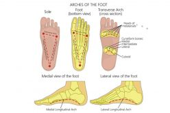 Treatment of plantar fasciitis with orthotics