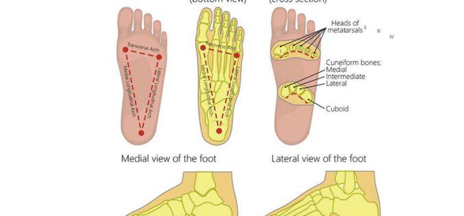 Treatment of plantar fasciitis with orthotics