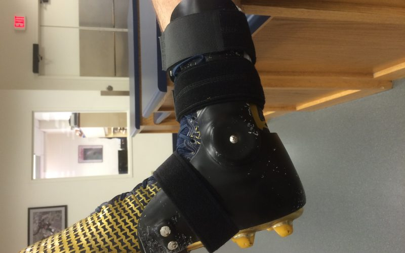An outside-the-shoe approach to ankle braces