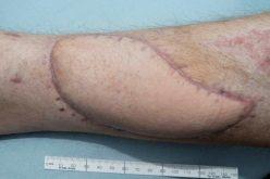 High-tech treatment of open leg wounds no better than using regular dressings
