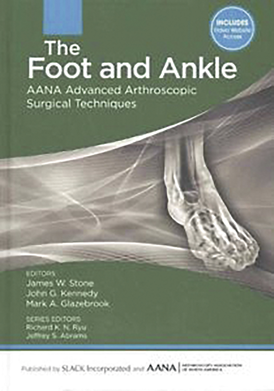 BOOK REVIEW – The foot and ankle: AANA advanced arthroscopic surgical  techniques - Orthopaedic Product News