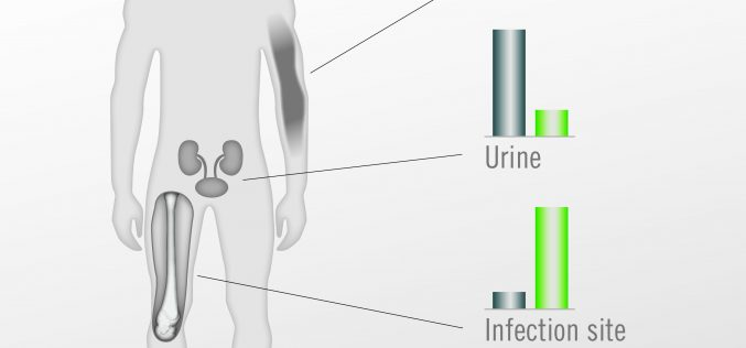 Infection management in orthopaedics and trauma surgery