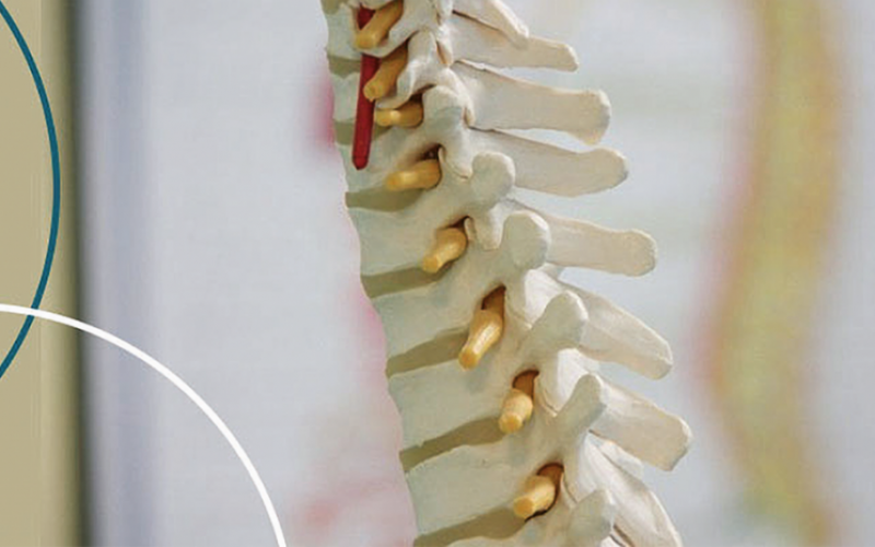 3D printed implants:  The future of spine?