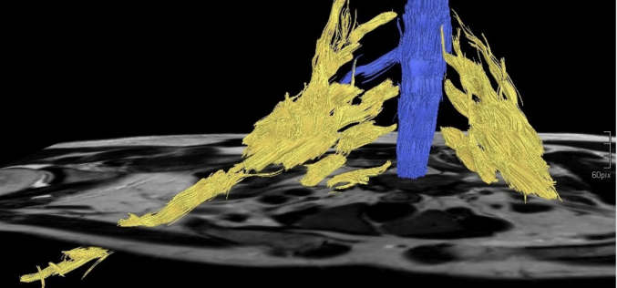 20-21 May 2019, Advanced MRI and CT imaging workshop: nerves, metal and more; Oswestry