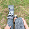 BOAST Guidelines for management of ankle fractures