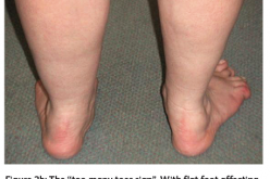 Adult acquired flat foot  (Pes Planus) deformity