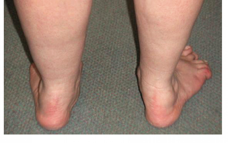 Adult acquired flat foot (Pes Planus) deformity - Orthopaedic