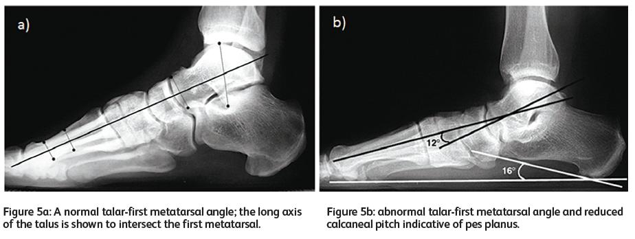 Adult acquired flat foot (Pes Planus) deformity