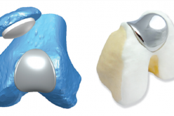 State of the art technology and surgery with 3D pre-op planning, 3D printing and custom-made implants is already in clinical practice today