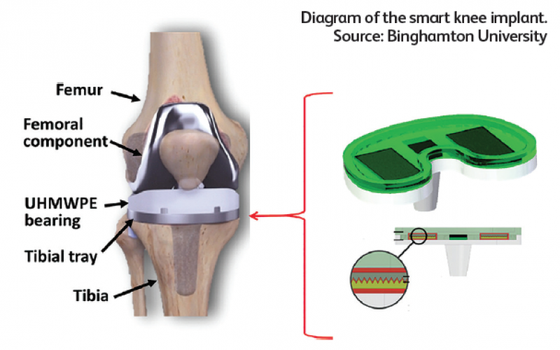 Smart knee implants may soon be a reality