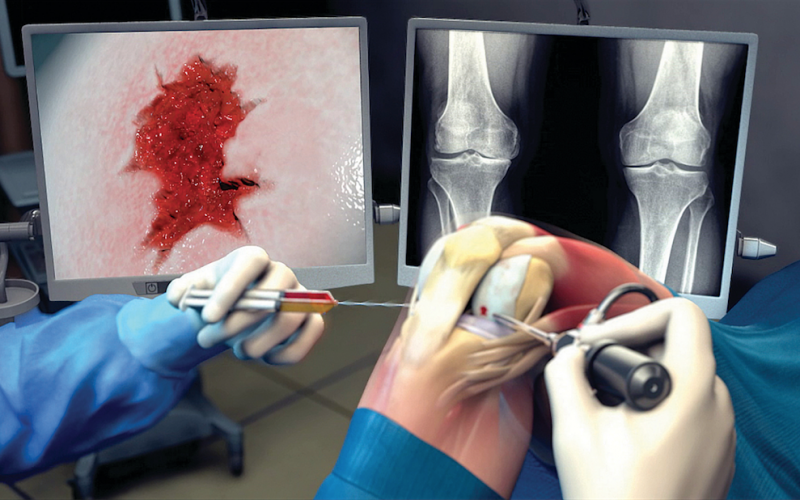 Taking steps towards injectable hydrogel for knee osteoarthritis