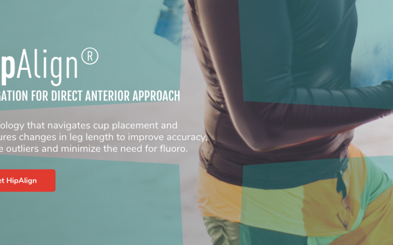OrthAlign announces launch of HipAlign application for surgical navigation in total hip arthroplasty