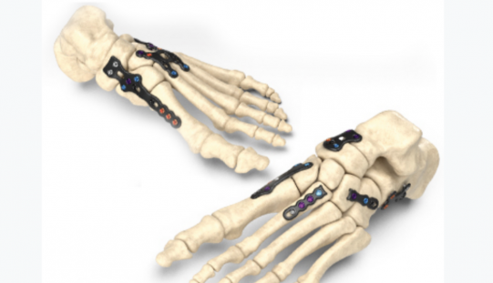 Zimmer Biomet launches Stratum Foot Plating System