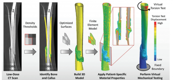 New tool can predict bone healing