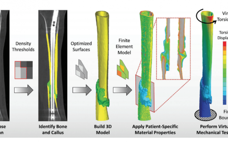 New tool can predict bone healing