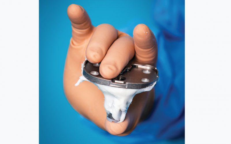 Onset of a minimally invasive era to set new possibilities for the bone cement industry
