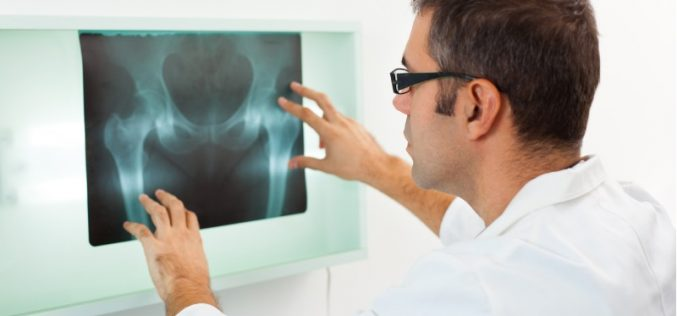 People with diabetes are at greater risk of bone fractures