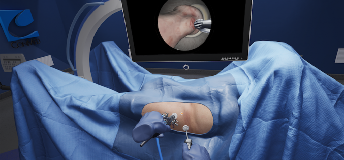 PrecisionOS Partners with CONMED International following breakthrough in portable arthroscopy education using  virtual reality