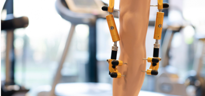 Restoration of cartilage can be a successful alternative to knee replacement