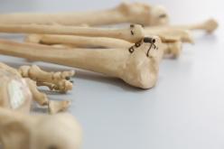 Can we make bones heal faster?