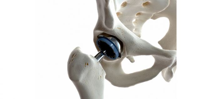 Unique study offers help for new hips
