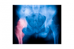 Hip fracture outcomes worse during busy periods