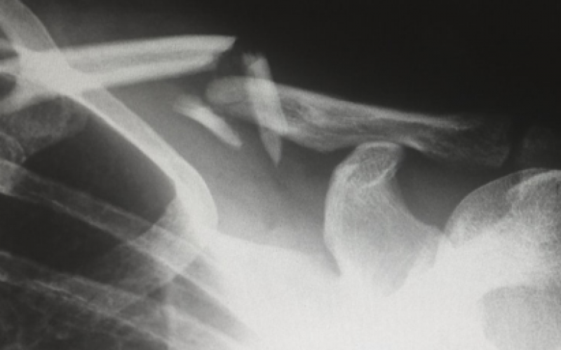 What innovations could shape the future of orthopaedics?