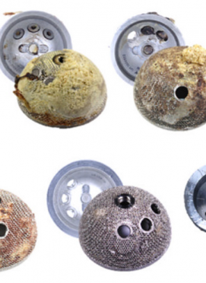 The implant detectives: The latest technology for analysing the performance of orthopaedic implants