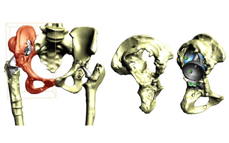 3D Planning for 3D Printing of custom-made implants in revision hip arthroplasty