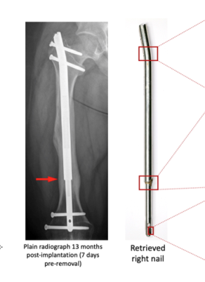 Magnetically controlled limb lengthening nails: The Stryde story